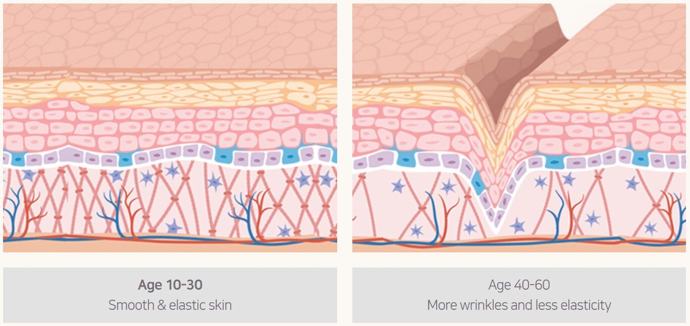Due to collagen reduction, our skin is losing elasticity